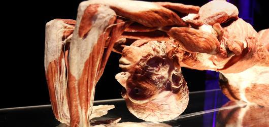 Lidské tělo do detailů. Kontroverzní výstava Body Worlds míří do Brna